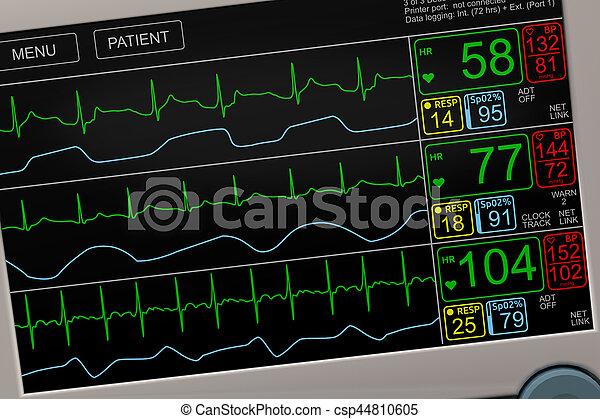 Vital Signs ICU Monitor Closeup - csp44810605