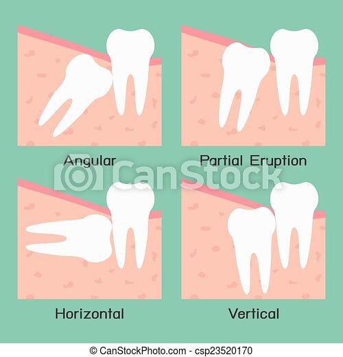 Wisdom Tooth - csp23520170
