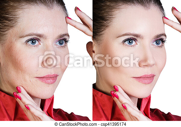 Woman before and after cosmetic procedure - csp41395174