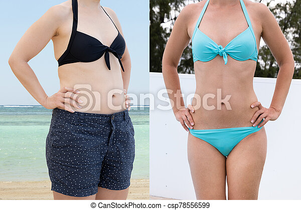 Woman Before And After From Fat To Slim Concept - csp78556599