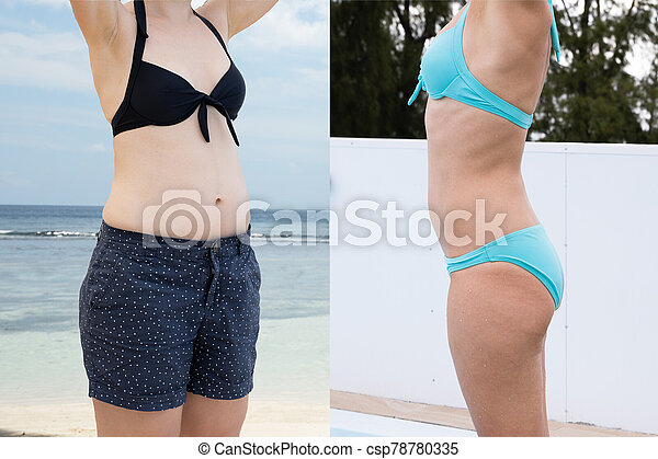 Woman Before And After From Fat To Slim Concept - csp78780335