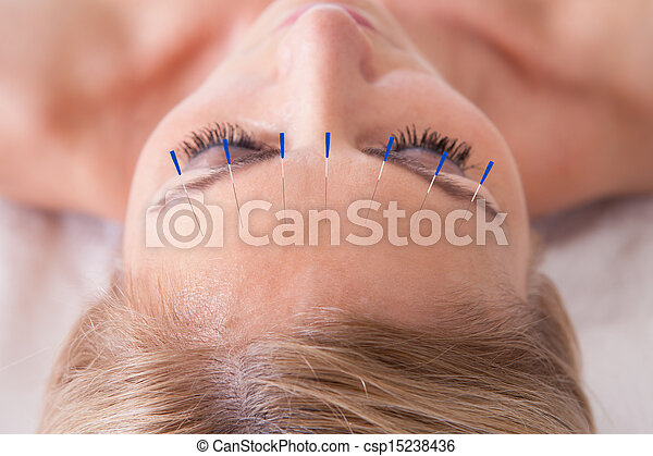 Woman Receiving An Acupuncture Needle Therapy - csp15238436