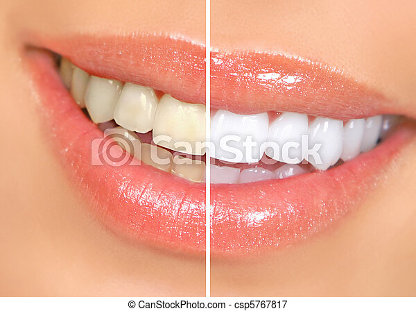 woman teeth - csp5767817