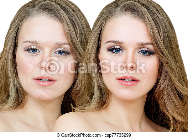Woman With Acne Before And After Treatment And Makeup Adult Woman With Acne Before And After Treatment And Makeup