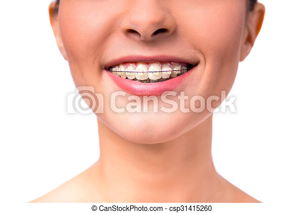 Woman with braces - csp31415260