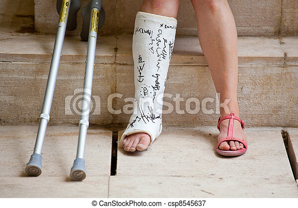 Woman with leg in plaster  - csp8545637