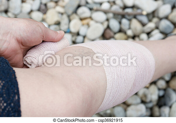 Woman with varicose veins applying compression bandage - csp36921915