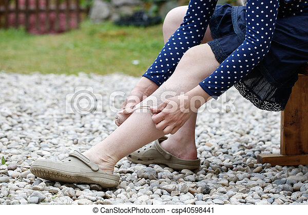 Woman with varicose veins applying compression bandage - csp40598441