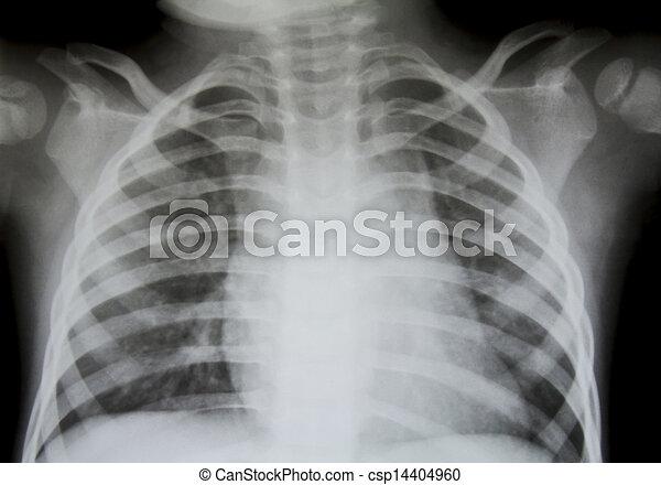 x-ray., borst - csp14404960