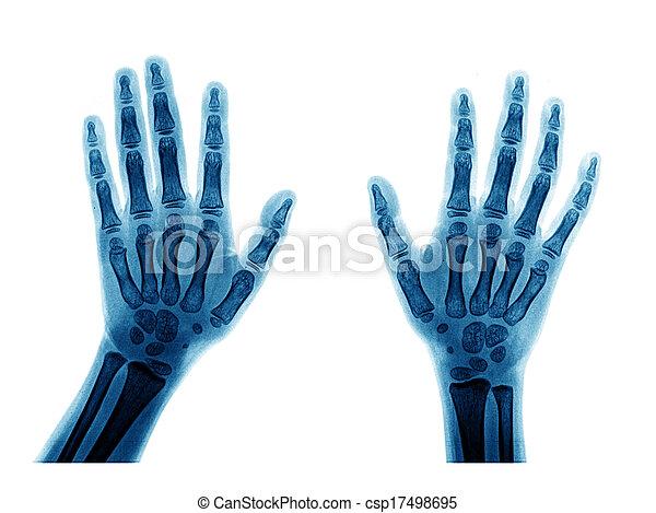X-ray hand - csp17498695