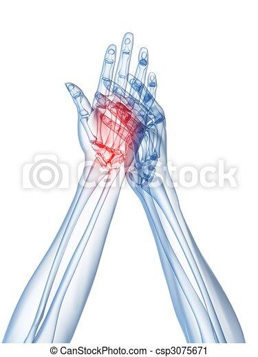 x-ray hands - arthritis  - csp3075671
