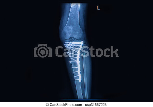 X Ray Of Fracture Tibia Leg Bone Tibia Bone With Internal Fixed By Plate Screw Canstock