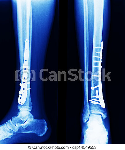 x ray of fractures bone - csp14549553
