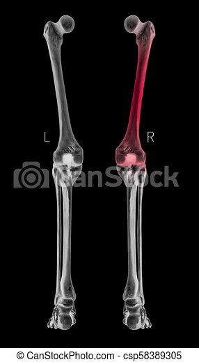 X-ray of human leg bone left and right- posterior view red ...