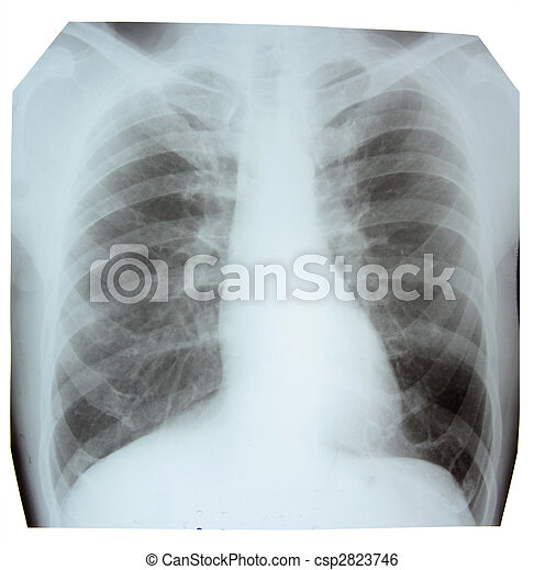 X-ray picture showing a normal chest area - csp2823746