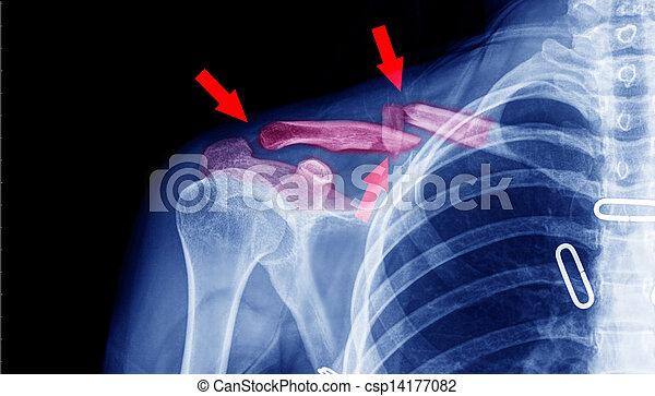 x-ray - csp14177082