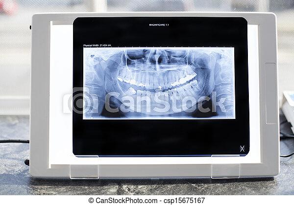 X-Ray Viewer - csp15675167