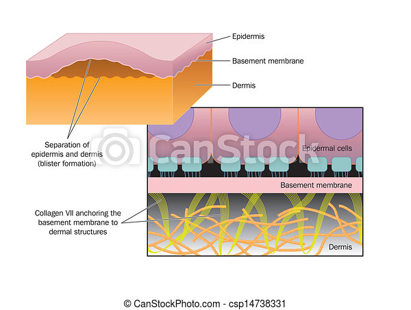 XFormation of a blister - csp14738331