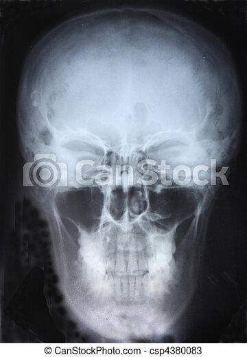 Xray of Skull - csp4380083
