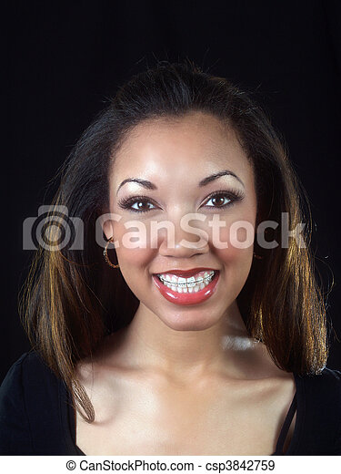Young African American woman smiling with braces - csp3842759