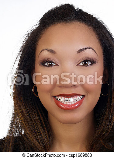 Young black woman with big smile braces upper teeth - csp1689883