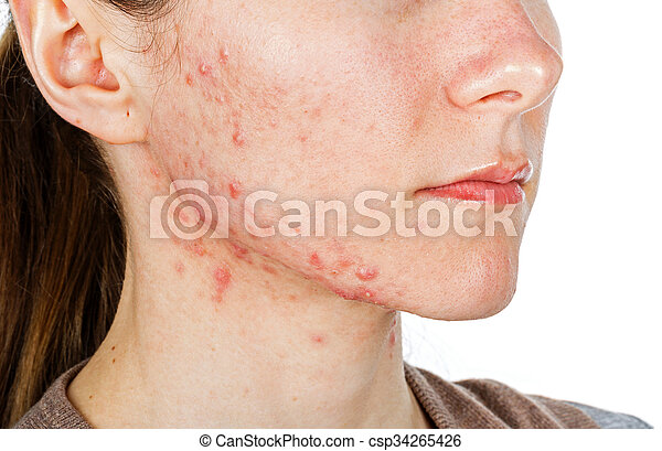 Young girl with skin problem - csp34265426