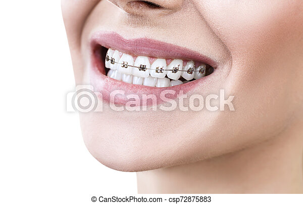 Young woman smiling with braces on teeth. - csp72875883