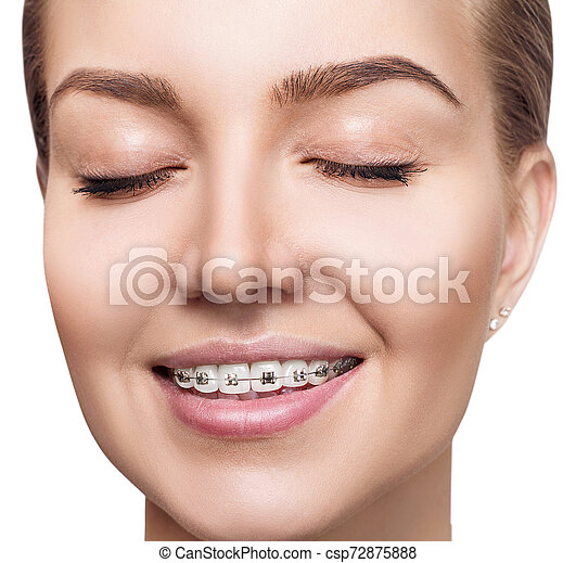 Young woman with braces on teeth. - csp72875888