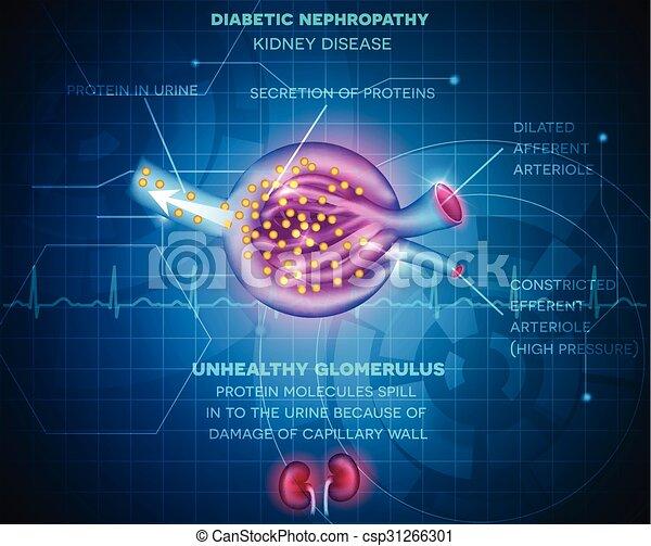 Diabetische Nephropathie - DGIM Innere Medizin - Dianol